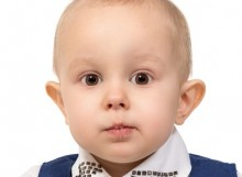 Otoplasty Ear Tuck Surgery