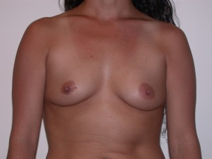 Breast Augmentation Patient 5 - Before