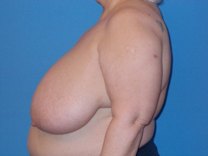 Breast Reduction Patient 2 - Before