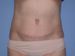 Abdominoplasty Patient 5 - After