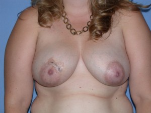 Breast Reconstruction Patient 3 - Before Nipple Sparing Mastectomy