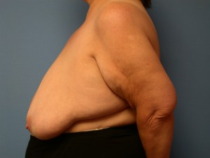 Breast Reduction Patient 5 - Before