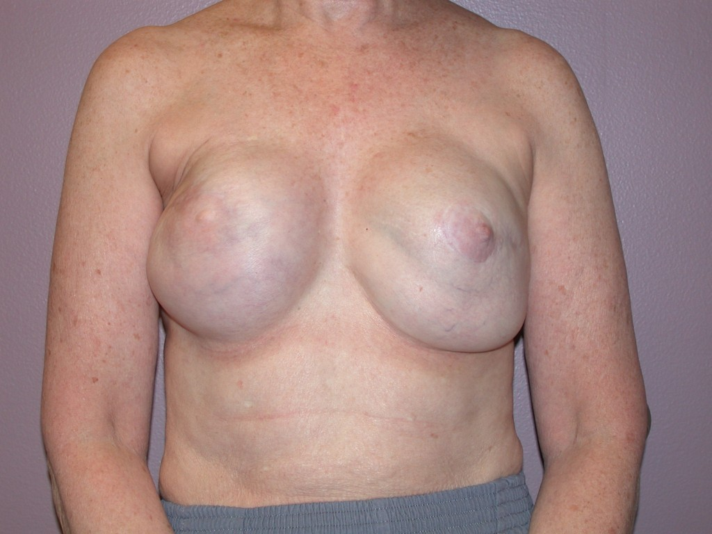 Breast Reconstruction Patient 7 - Revision, Before Latissimus Flap