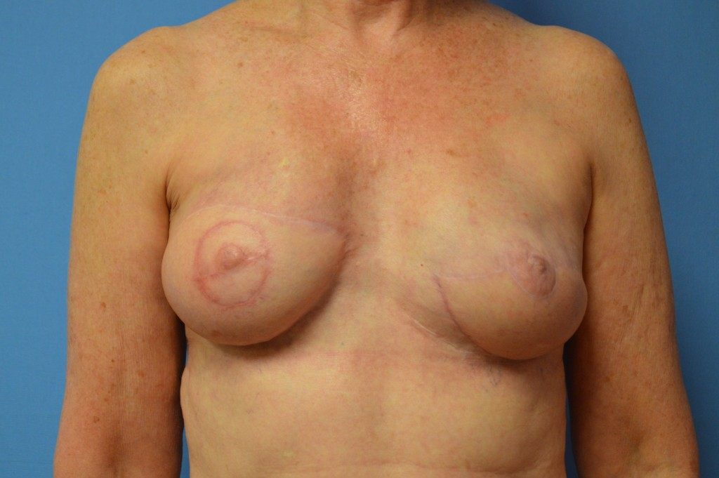 Breast Reconstruction Patient 7 - Revision,After Latissimus Flap