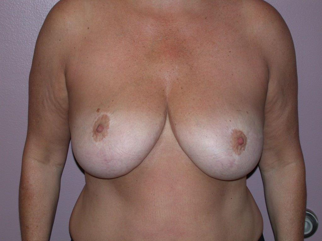 Breast Reduction Patient 4 - Before