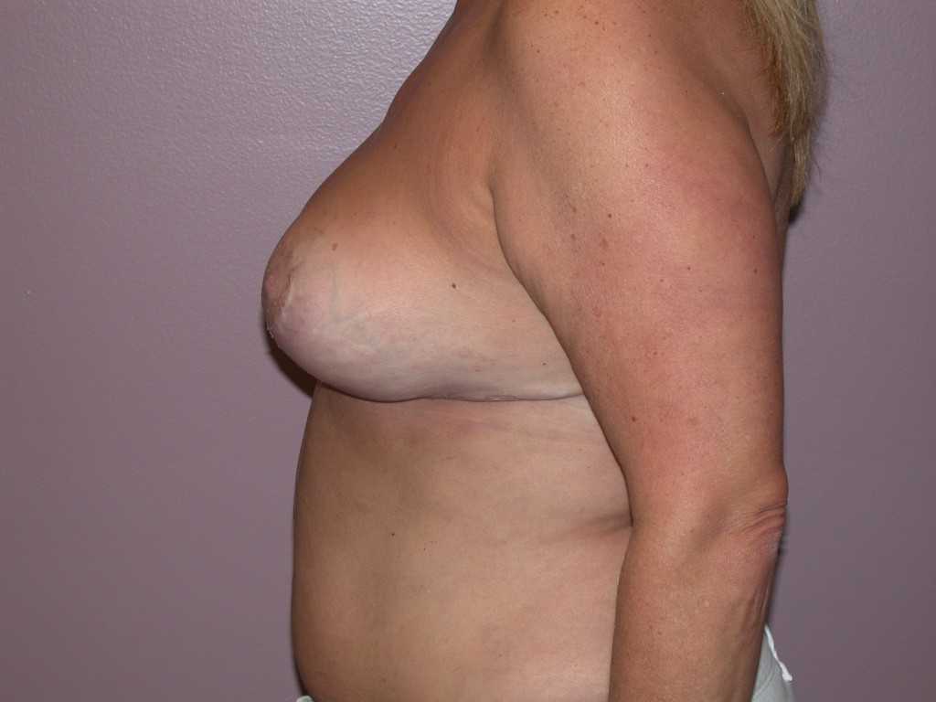 Breast Reduction Patient 4 - After