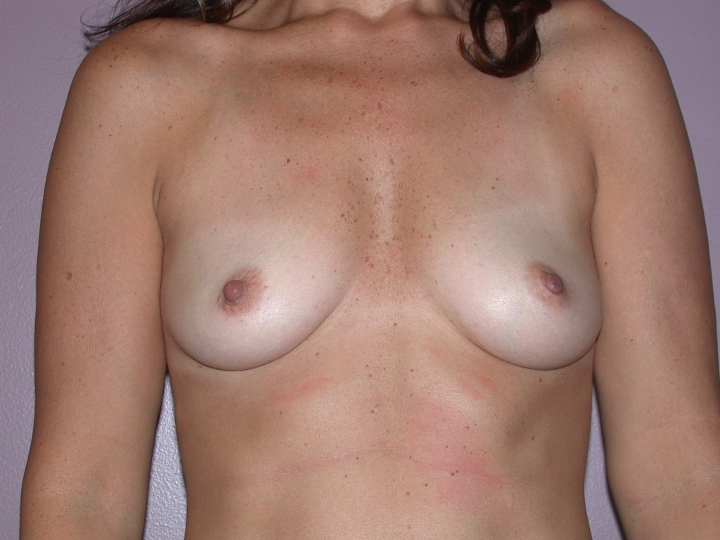 Breast Augmentation Patient 3 - Before