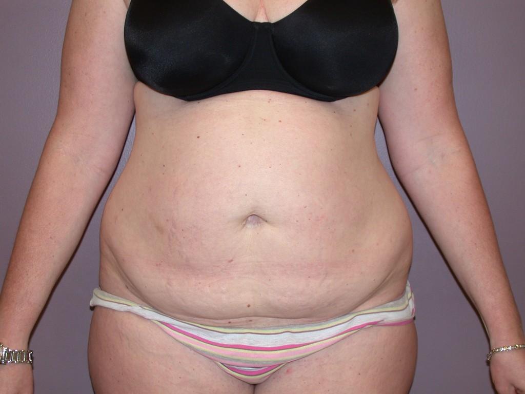 Abdominoplasty Patient 1 - Before, View 1