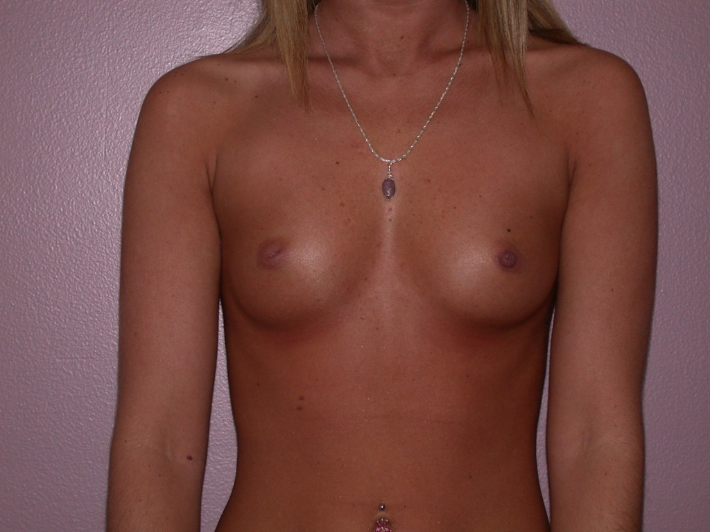 Breast Augmentation Patient 6 - Before