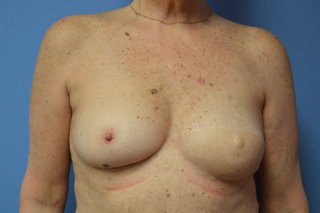 Breast Reconstruction Patient 6 - Delayed, After Latissimus Flap