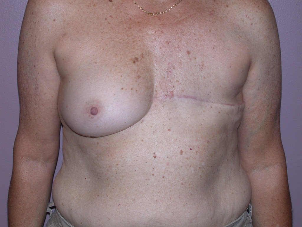 Breast Reconstruction Patient 6 - Delayed, Latissimus Flap