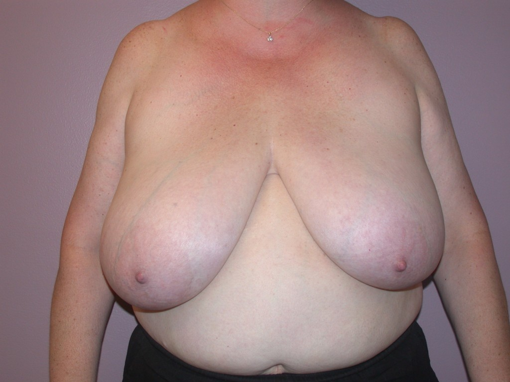 Breast Reduction Patient 3 - Before