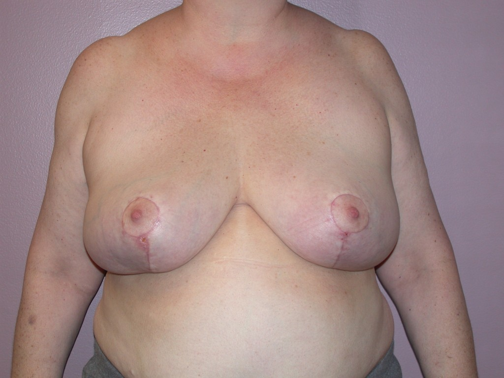 Breast Reduction Patient 3 - After