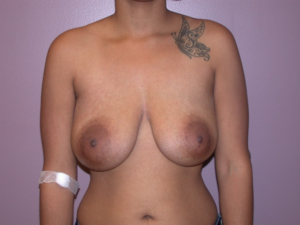 Breast Reconstruction Patient 4 - Before Mastectomy
