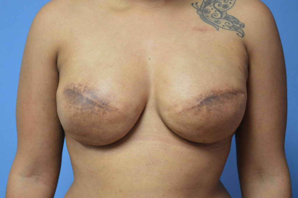 Breast Reconstruction Patient 4 - After Mastectomy