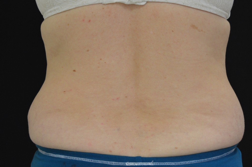 CoolSculpting Patient 1 - Before