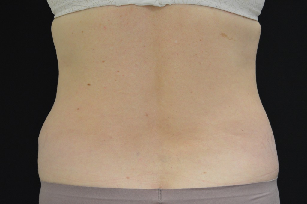 CoolSculpting Patient 1 - After 1 month