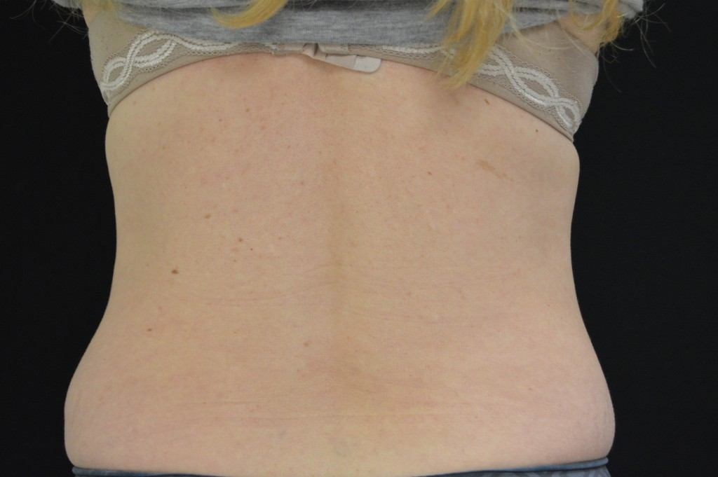 CoolSculpting Patient 1 - After 5 months