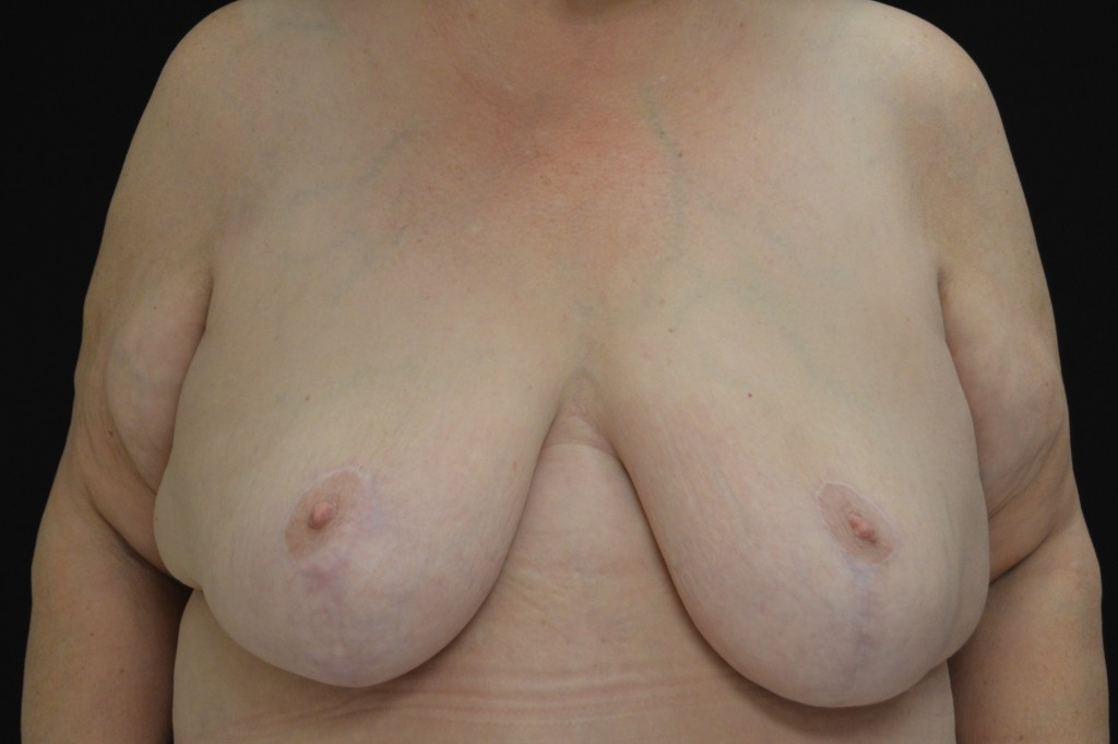Breast Reduction Patient 5 - After