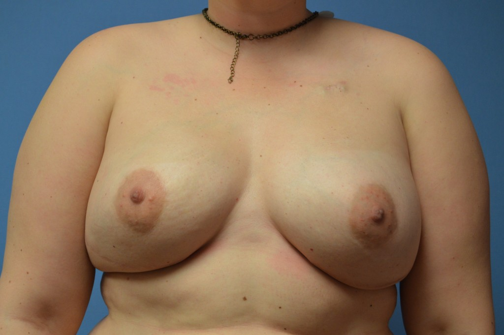 Breast Reconstruction Patient 3 - After Nipple Sparing Mastectomy