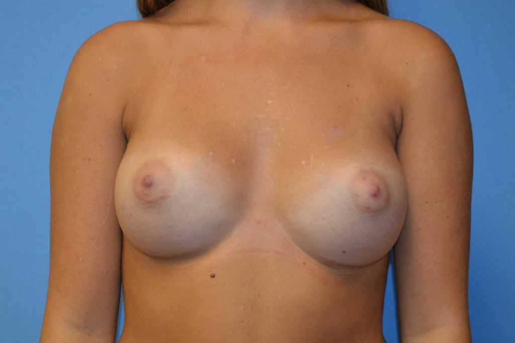 Breast Augmentation Patient 1 - After