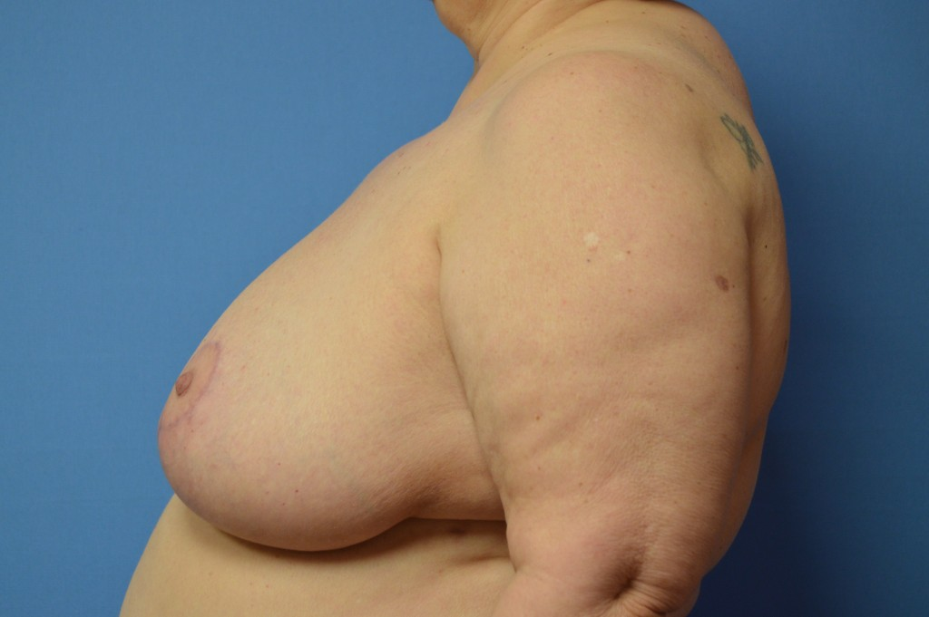 Breast Reduction Patient 2 - After