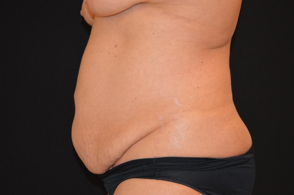 Abdominoplasty Patient 4 - Before