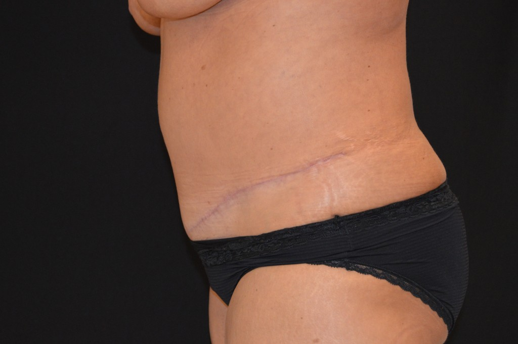 Abdominoplasty Patient 4 - After