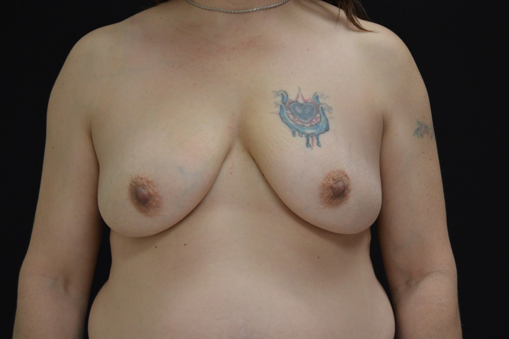 Breast Reconstruction Patient 2 - Before Nipple Sparing Mastectomy