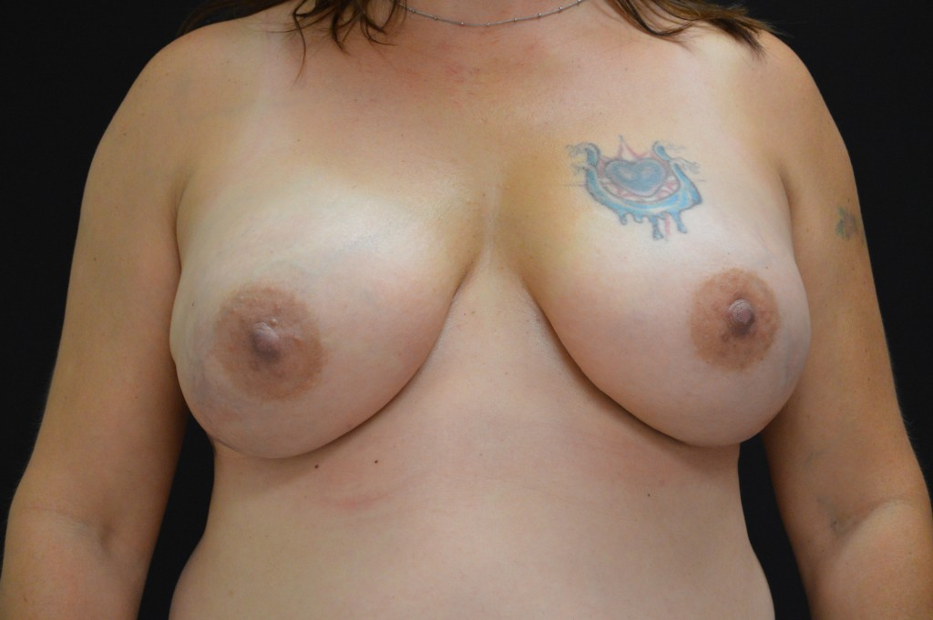 Breast Reconstruction Patient 2 - After Nipple Sparing Mastectomy