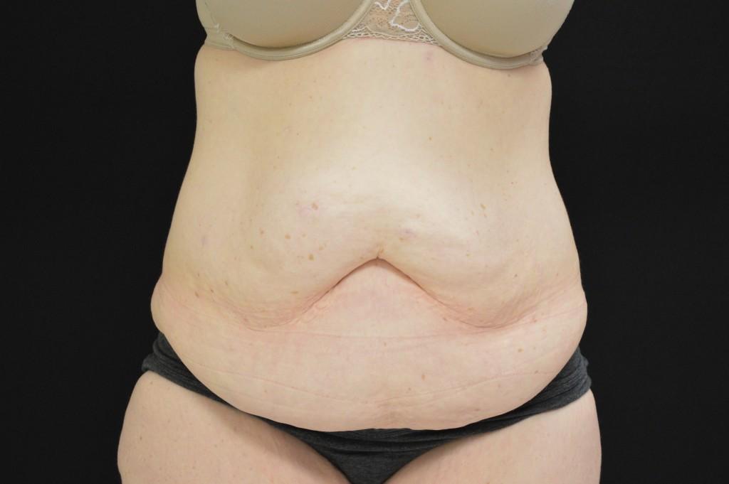 Abdominoplasty Patient 3 - Before
