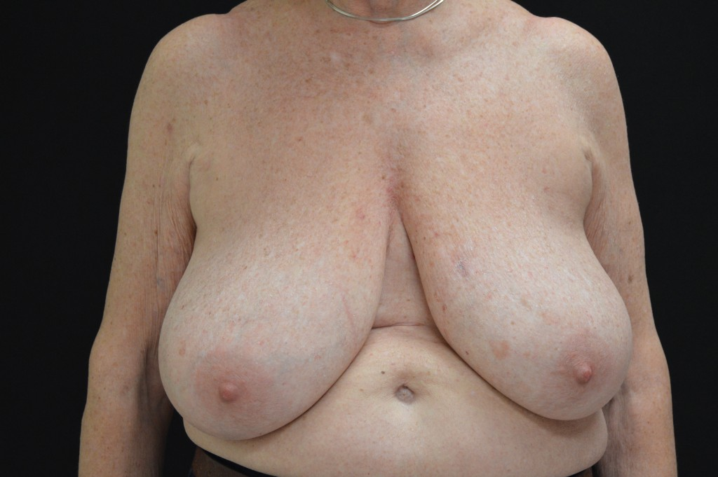 Breast Reconstruction Patient 5 - Before Nipple Sparing Mastectomy & Mastopexy (Breast Lift)