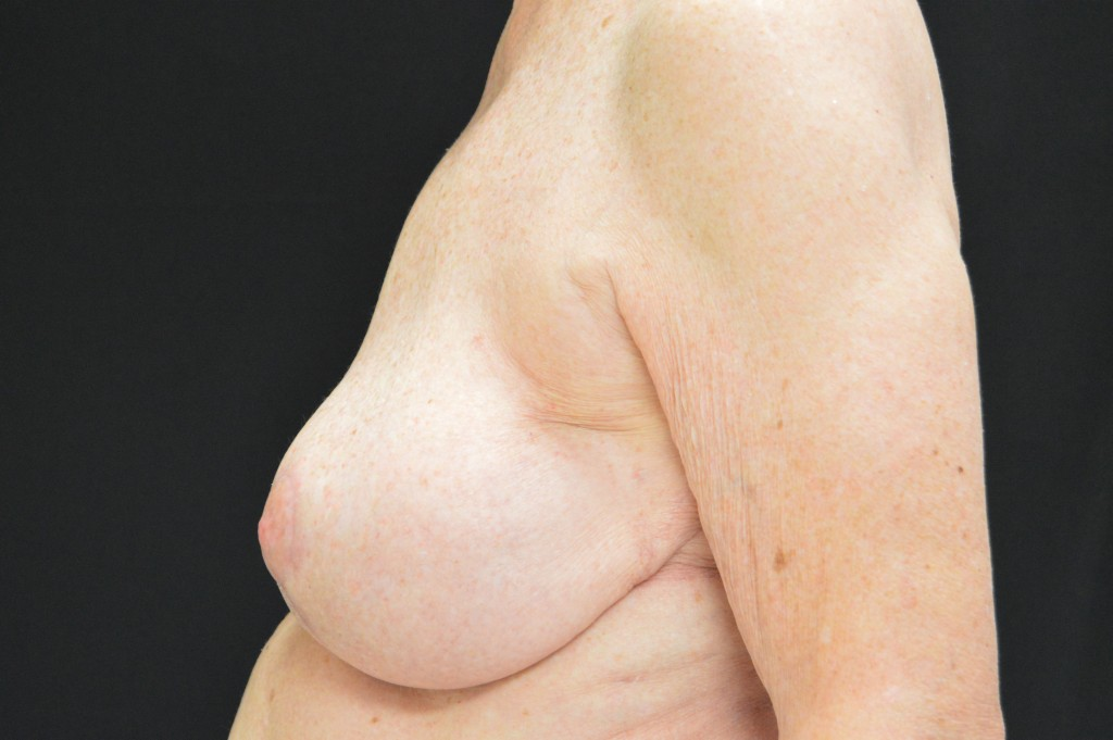 Breast Reconstruction Patient 5 - After Nipple Sparing Mastectomy & Mastopexy (Breast Lift)