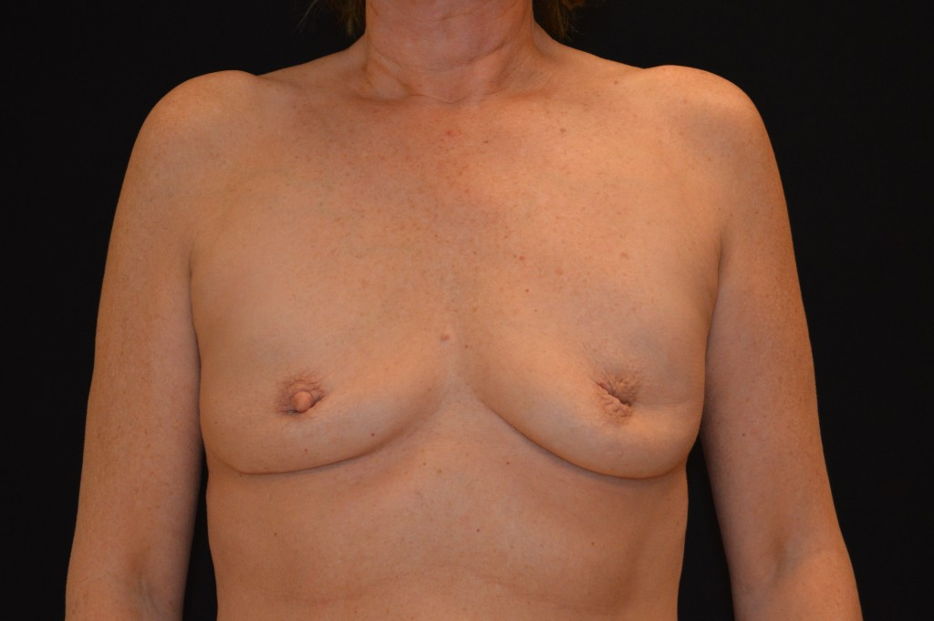Breast Augmentation Patient 4 - Before