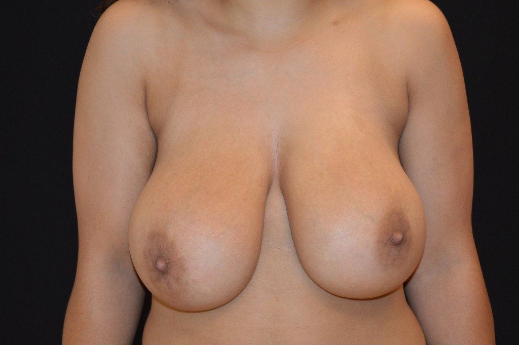 Breast Reduction Patient 1 - Before