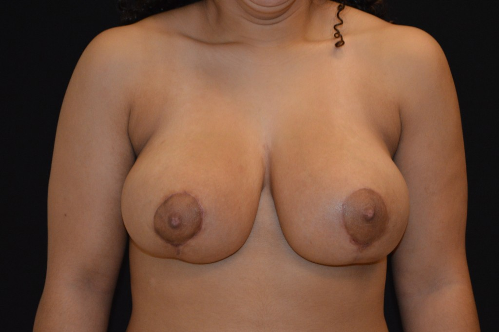 Breast Reduction Patient 1 - After