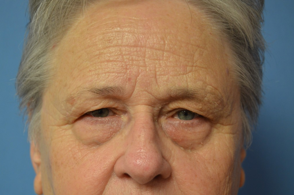 Upper Blepharoplasty Patient 2 - Before