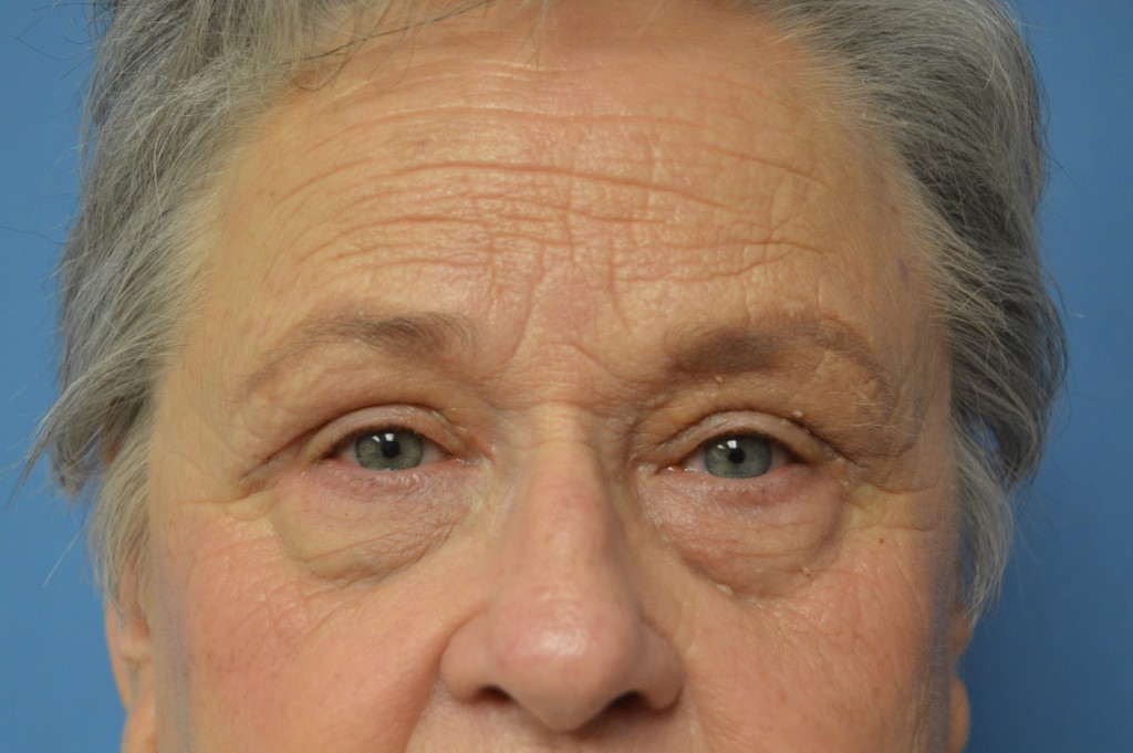 Upper Blepharoplasty Patient 2 - After