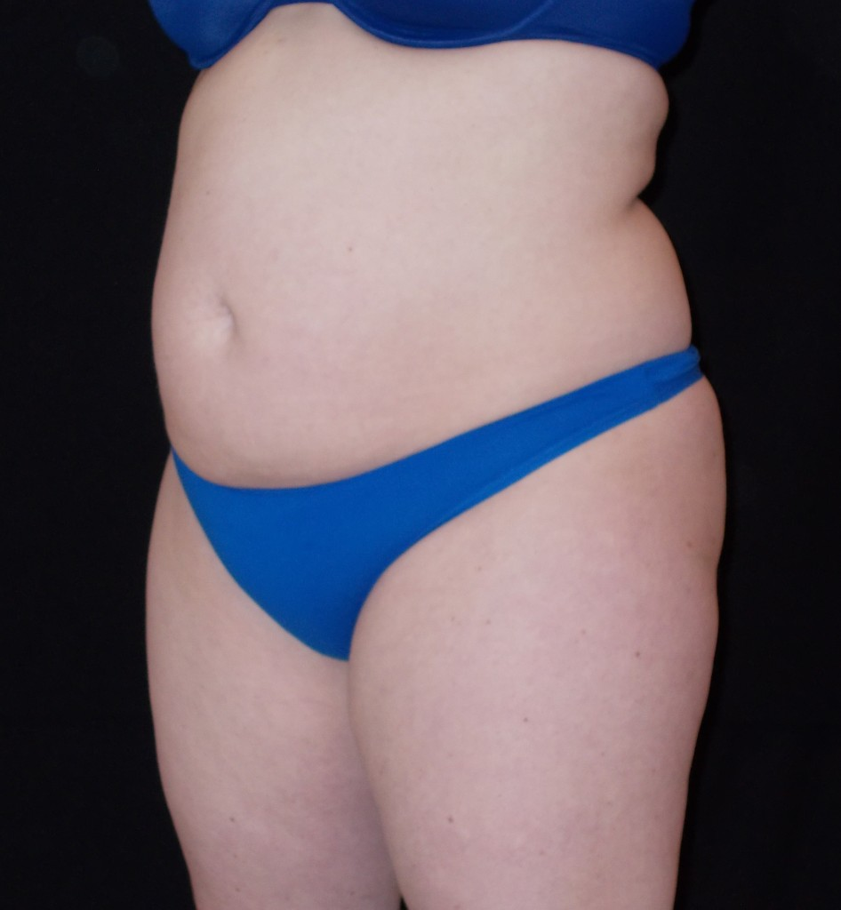CoolSculpting Patient 3 - After 6 weeks