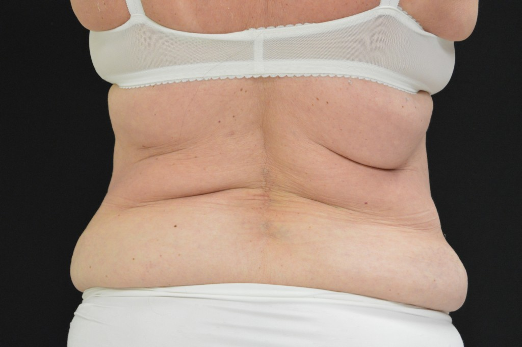 CoolSculpting Patient 2 - Before