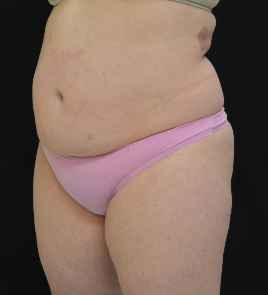 CoolSculpting Patient 3 - Before