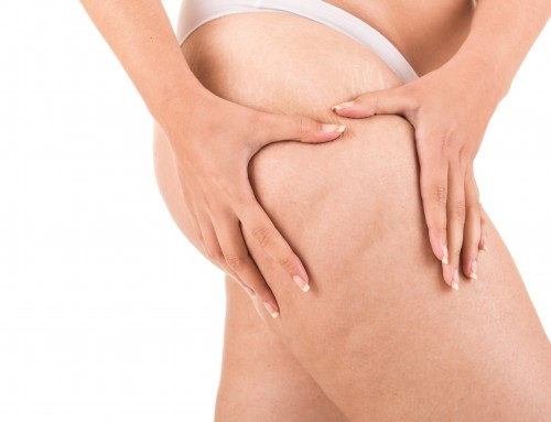 Cellfina®: Non-Surgical Cellulite Reduction