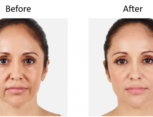 The Liquid Facelift: Boost Your Look Without Surgery