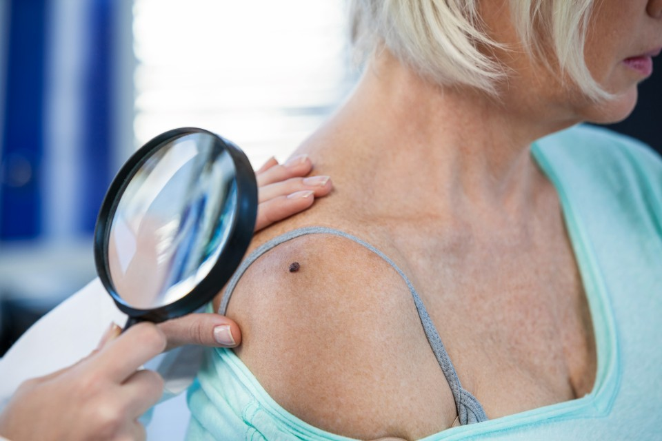 Skin Cancer & Skin Cancer Surgery: 9 Facts You Need To Know